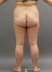脂肪吸引 術前 写真 大阪