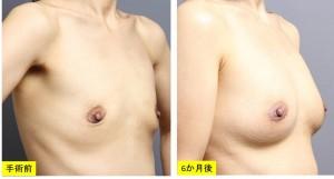 豊胸手術 写真 授乳後