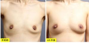 豊胸手術 授乳後 症例写真