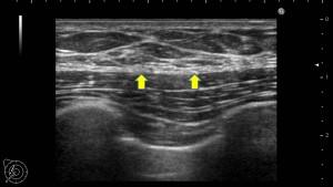 女性化乳房 脂肪吸引 繊維化 画像