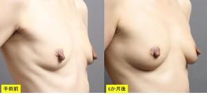 豊胸手術 脂肪注入 写真 大阪