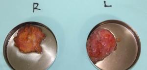 女性化乳房 乳腺 画像