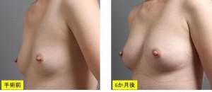 豊胸手術 写真 大阪