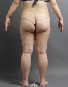 脂肪吸引 術後 写真 大阪
