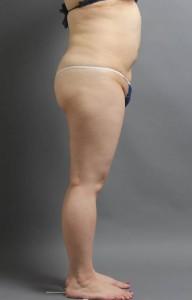 脂肪吸引 術後 お腹 写真