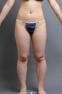 脂肪吸引 ブログ 大阪