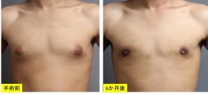 女性化乳房 真性 症例 画像