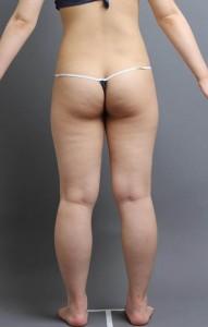 脂肪吸引 モニター 大阪