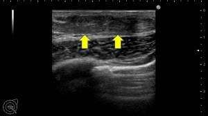 女性化乳房 真性 エコー検査 画像