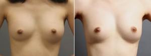 豊胸手術 脂肪注入 バッグ抜去 写真