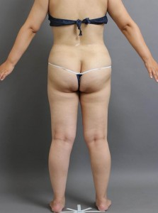 ベイザー脂肪吸引 お尻 腰 写真 大阪