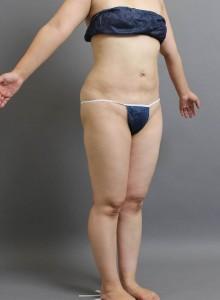 ベイザー脂肪吸引 お腹 写真 ブログ 大阪