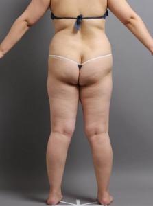 脂肪吸引 お尻 腰 写真 大阪