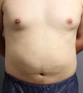 ベイザー脂肪吸引 男性 お腹 写真