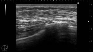女性化乳房 胸 真性 乳腺 画像