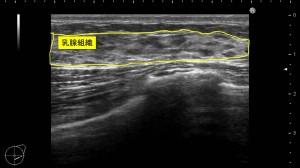女性化乳房 男性 胸 乳腺 写真