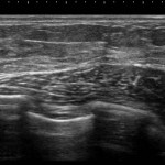 女性化乳房 真性 乳腺 画像