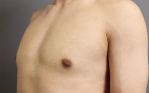 女性化乳房 ベイザー脂肪吸引 偽性 写真 ブログ