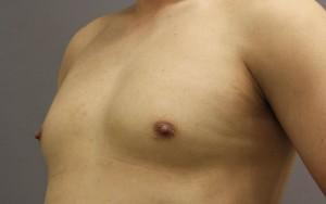 女性化乳房 脂肪吸引 男性 胸 写真