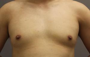 女性化乳房 偽性 脂肪吸引 写真 ブログ