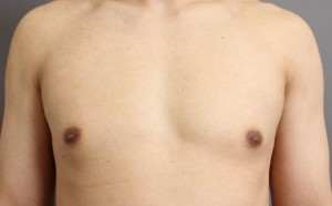 女性化乳房 ベイザー脂肪吸引 偽性 男性 写真