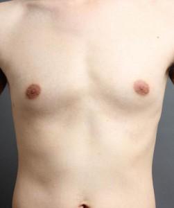 男性 胸 女性化乳房 写真