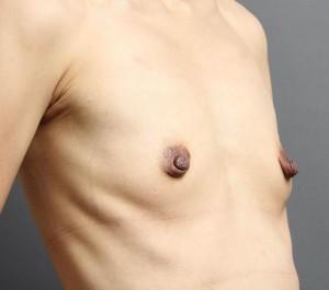 豊胸手術 脂肪注入 術前 写真