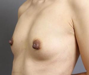 豊胸手術 脂肪注入 コンデンスリッチ豊胸 画像