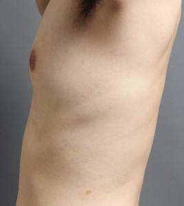 男性 女性化乳房 画像 ブログ