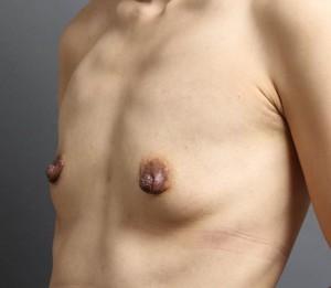 豊胸手術 脂肪注入 術前 画像