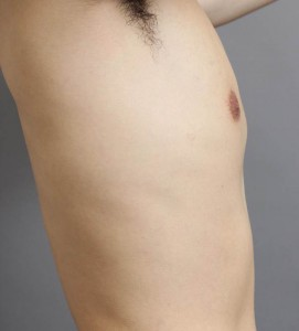 女性化乳房 脂肪吸引 男性 画像