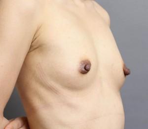 豊胸手術 コンデンスリッチ豊胸 脂肪注入 画像