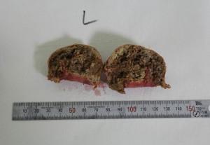 豊胸手術 脂肪注入 石灰化 しこり 画像