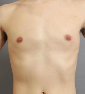 男性 胸 脂肪吸引 画像
