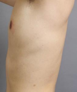 男性 女性化乳房 脂肪吸引 画像