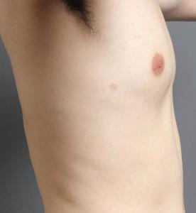 男性 胸 女性化乳房 画像