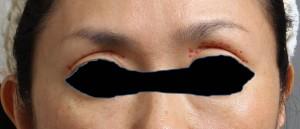 顔 脂肪注入 目 写真