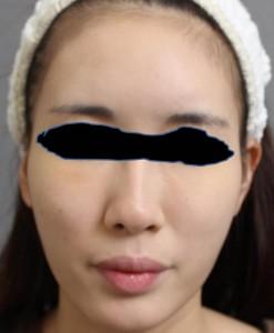 頬のたるみ 脂肪注入 顔 画像