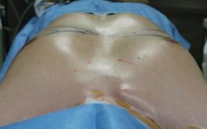 脂肪吸引 女性化乳房 男性 胸 画像
