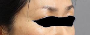 マイクロCRF 脂肪注入 顔 目の上 画像