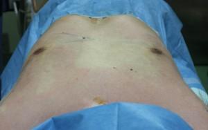 ベイザー脂肪吸引 女性化乳房 男性 胸 写真
