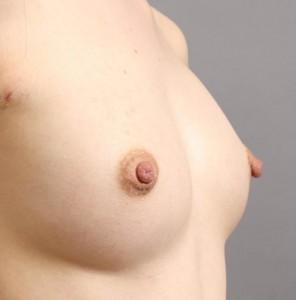 コンデンスリッチ豊胸 脂肪注入 写真 ブログ