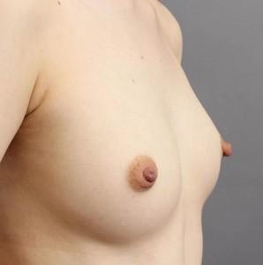 豊胸手術 脂肪注入 モニター 画像
