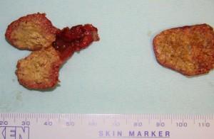 豊胸手術 脂肪注入 しこり 画像