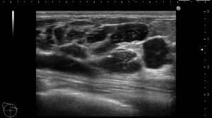 乳腺下に多発するヒアルロン酸
