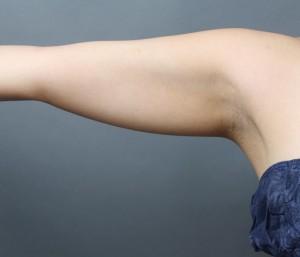 二の腕-脂肪吸引-ベイザー