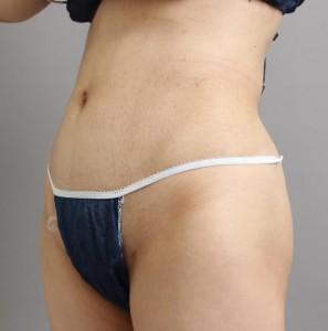 ベイザーリポ-脂肪吸引-お腹