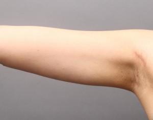 二の腕 脂肪吸引 たるみ