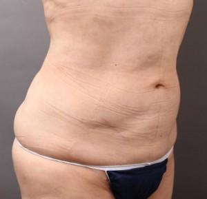 ベイザー 脂肪吸引