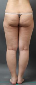 太もも 脂肪吸引